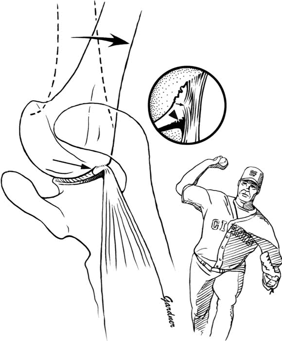 internal impingement of the shoulder  comparison of findings between the throwing and